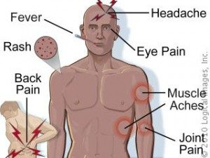 Valley Fever Symptoms, Valley Fever Diagnosis, Valley Fever California