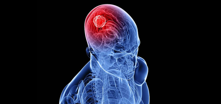 How THC & Cannabis Destroys Tumors